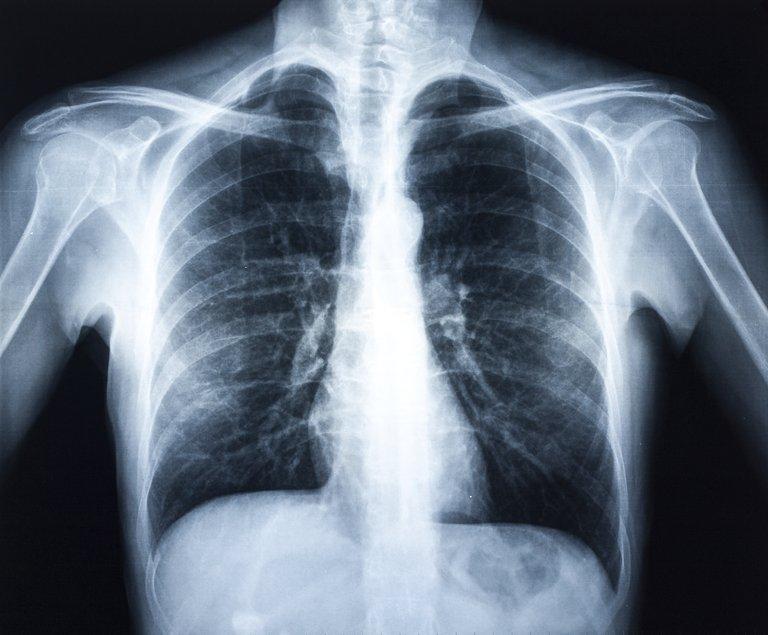 lungs_x-ray.jpg__768x768_q85_subsampling-2